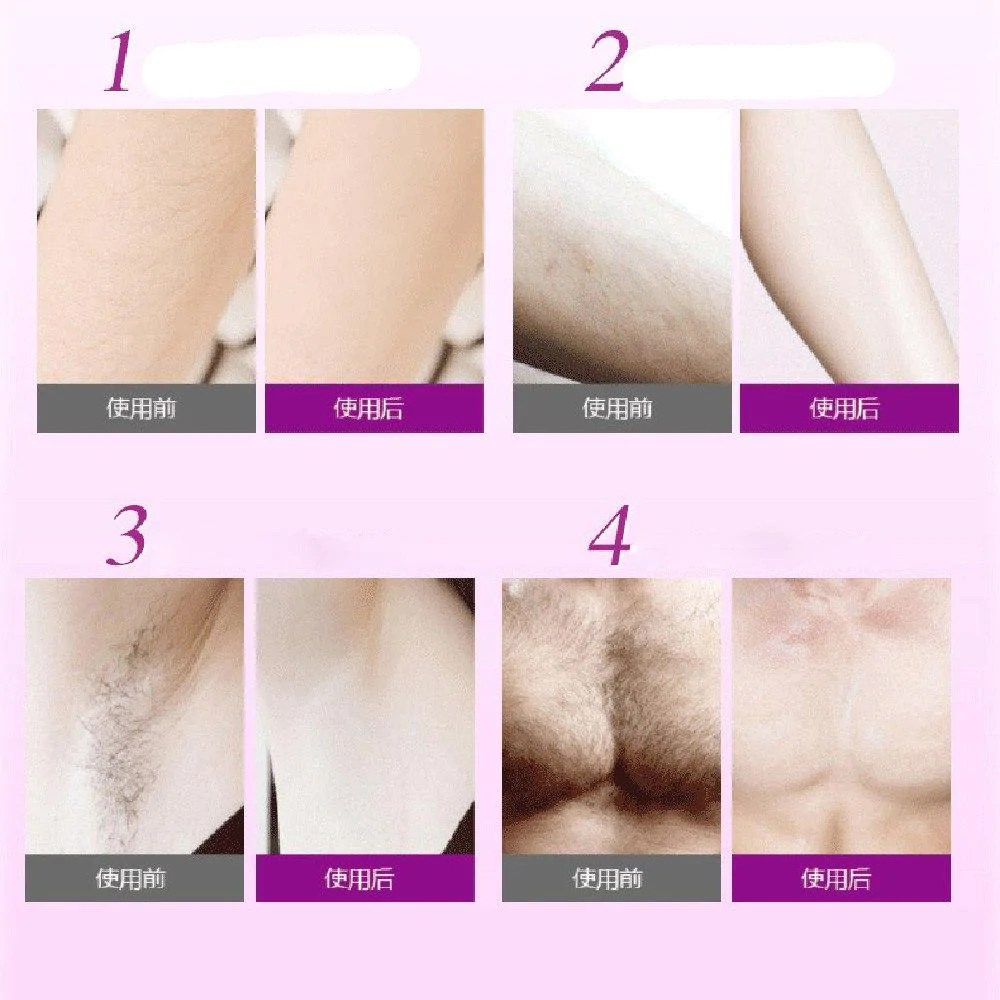 Haar Entfernen Smooth Hair Removal Spray Glatte Haut In Sekunden
